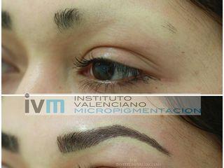 Micropigmentacóon de cejas en caso de alopecia parcial