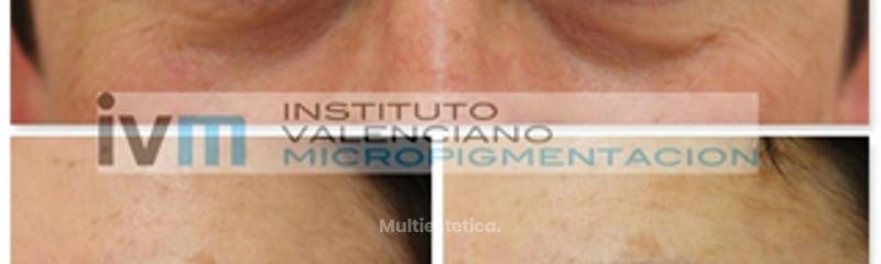 Micropigmentación de cejas con técnica realista