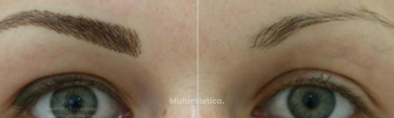 Micropigmentacion con tecnica pelo a pelo