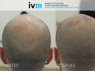 Tricopigmentación capital con técnica de micropigmentación
