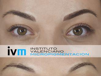 Micropigmentación - 622977