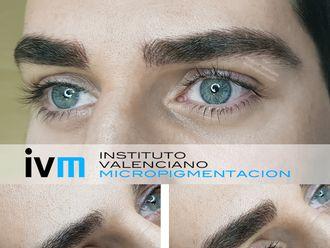 Micropigmentación-622980