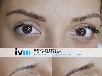 Micropigmentación - 622981