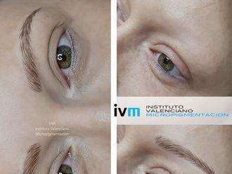 Micropigmentación - 622982