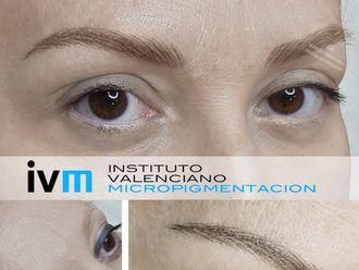 Micropigmentación-622983