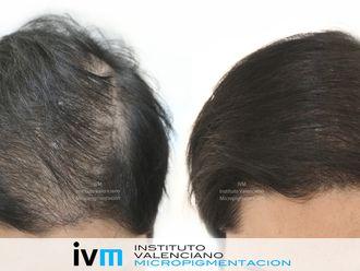 Alopecia-624120