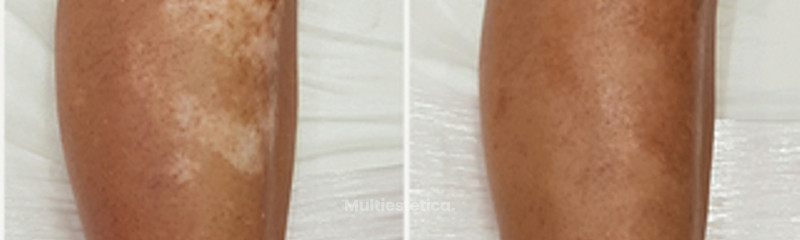 Camuflaje de vitíligo mediante técnica de micropigmentación