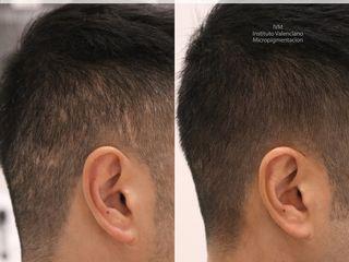 Antes y después Camuflaje de cicatrices mediante técnica de tricopigmentación
