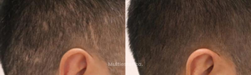 Camuflaje de cicatrices mediante técnica de tricopigmentación