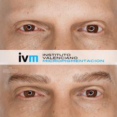 Antes y después Micropigmentación de cejas - Instituto Valenciano Micropigmentación