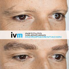 Antes y después micropigmentacion cejas - Instituto Valenciano Micropigmentación