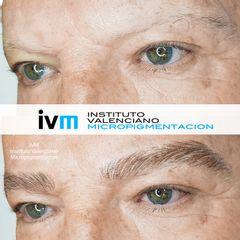 Antes y después micropigmentacion cejas