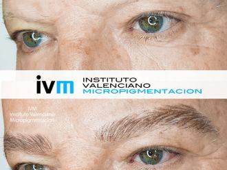 Micropigmentación - 649275