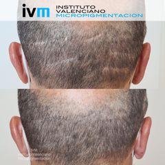 Tricopigmentación - Instituto Valenciano Micropigmentación