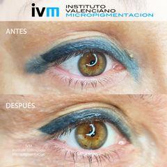 Eliminación de micropigmentación - Instituto Valenciano Micropigmentación