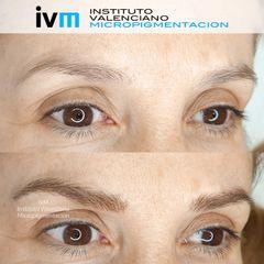 Cejas pelo a pelo - Instituto Valenciano Micropigmentación