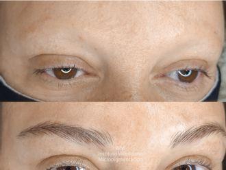 Alopecia - 791711