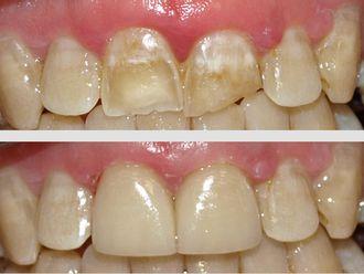 Ortodoncia - 500740