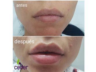 Aumento labios - 634350