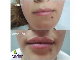 Aumento labios - 634351