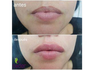 Aumento labios - 634353
