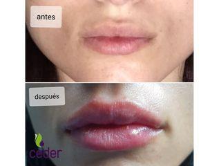 LabiosAntes y después Aumento de labios