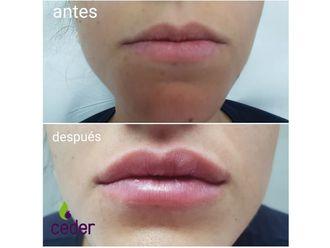 Aumento labios - 634356