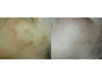 Dermatología-738664