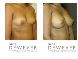 Aumento mamario protesis anatómicas