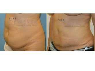 Abdominoplastia - 636927