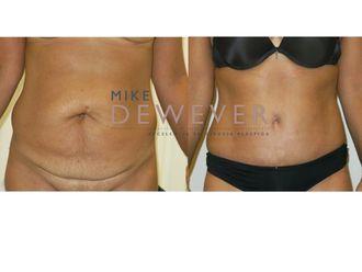 Abdominoplastia - 637672