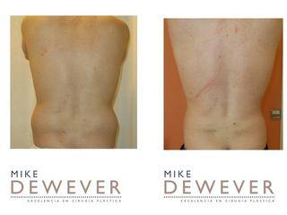 Antes y después Liposucción de flancos - Clinica Belba