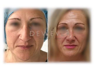 Antes y después Rinoplastia - Clinica Belba