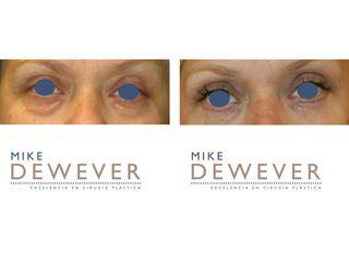 Antes y después Blefaroplastia inferior con xantelasma - Clinica Belba
