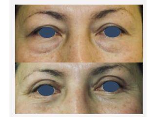 Antes y después Blefaroplastia - Clinica Belba