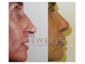 Cirugía estética-738142