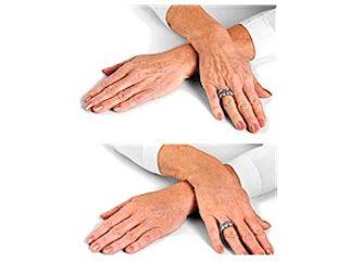 Antes y después Rejuvenecimiento manos