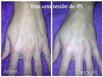 Dermatología-616467