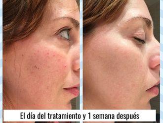 Dermatología-634607