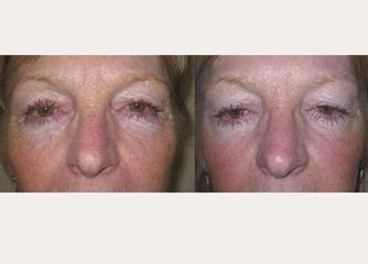 Antes y después Rellenos con botox