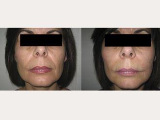 Rellenos faciales-344948