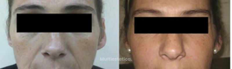 Relleno y botox