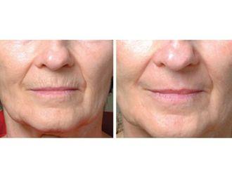 Rejuvenecimiento facial-494687