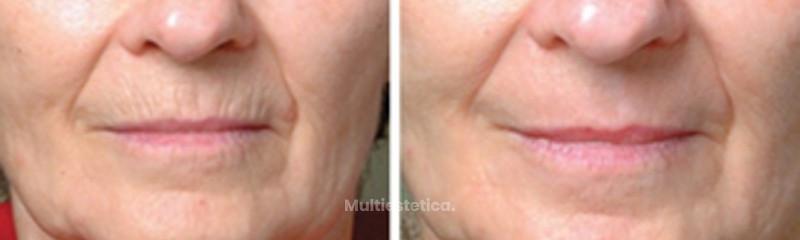 Eliminación de arrugas del comunmente denominado código de barras