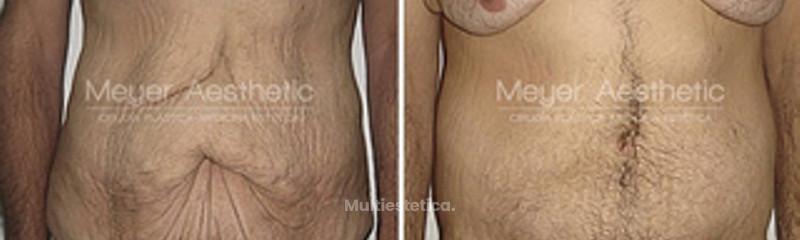 abdominoplastia_1 (1)
