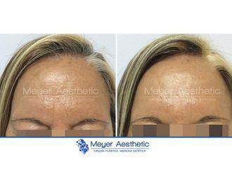 Medicina estética-608033