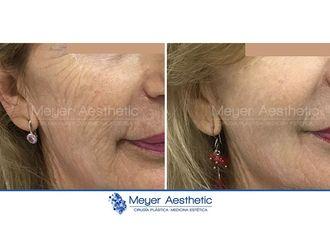 Rejuvenecimiento facial-608035