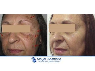 Tratamiento antimanchas - 608036