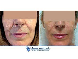 Rellenos faciales - 608039