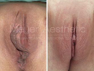Labioplastia - 629709